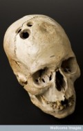 Bronze Age skull from Jericho, Palestine, 2200-2000 Credit: Science Museum, London. Wellcome Images images@wellcome.ac.uk